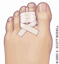 Fractures of the toe are one of the most common lower extremity fractures diagnosed by family physicians. Toe fractures most frequently are caused by a crushing injury or axial force such as stubbing a toe. Joint hyperextension and stress fractures are less common. Most patients have point tenderness at the fracture site or pain with gentle axial loading of the digit.