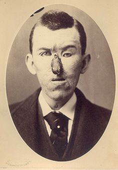 Rhinoplasty. Loss of nose due to an injury, replaced with a finger in 1880. Surgery by Dr. E. Hart, photo by OG Mason, both of Bellevue Hospital, NY.