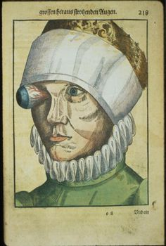 Ophthalmodouleia-livre-ancien-chirurgie-oeil-ophtalmologie-00