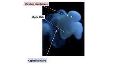 米大学の研究所、人の胎児を99%再現した脳の培養に成功する