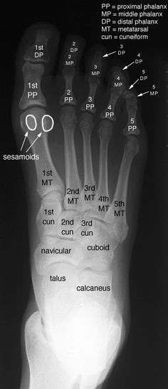 Radiographic Anatomy of the Skeleton: Foot -- Anteroposterior (AP) View, Labelled