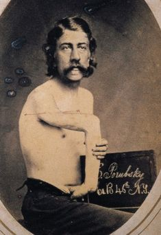 Bone-excision procedure performed on Pvt. Porubsky from the Reed Bontecou Civil War surgical album (ca. 1865)