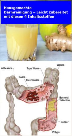 Homemade Colon Cleansing – Easily Made with These 4 Ingredients Homemade Colon Cleanse, Health Cleanse, Eat Smart, Body Detox, Health Remedies, Healthy Life, Health Tips, Smoothies, Food And Drink