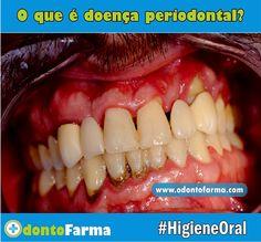 doença-periodontal