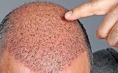 """Método simple """"regenera"""" el cabello. Haga esto."""