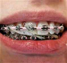 Dental Braces, Teeth Braces, Dental Videos, Braces Girls, Braces Colors, Brace Face, Rubber Bands, Beautiful Smile, Headgear