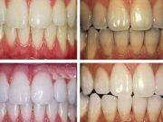 Our home teeth whitening kit is designed to deliver results in 6 days. Our best selling Peroxide-free teeth whitening kit, whitens and brightens your teeth without pain or sensitivity. Teeth Whitening Remedies, Teeth Whitening System, Natural Teeth Whitening, Whitening Kit, Heal Cavities, Coffee And Cigarettes, Emergency Dentist, Smile Makeover, Creative