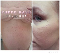 PUPPP Pregnancy Rash Relief that WORKS | Essential Oils | DoTerra | Young Living | Melaleuca Tea Tree Oil Uses