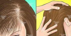 Ceci est la recette la plus efficace contre la chute de cheveux ! Comment lutter contre la perte des cheveux ? Ne plus perdre ses cheveux. Remède naturel.