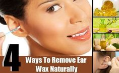 Ear wax, apart from being an unwanted object, acts as a cleansing agent. Our body has its own mechanisms to remove excess wax. Our jaw actions, chewing and Dry Skin Remedies, Home Remedies, Natural Remedies, Remove Wax, How To Remove, Ear Wax Buildup, Ear Wax Removal, Ear Parts, Ear Cleaning