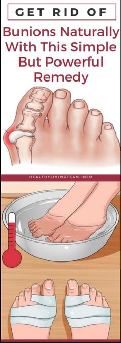 GET RID OF BUNIONS NATURALLY WITH THIS SIMPLE BUT POWERFUL REMEDY – Bustle