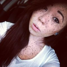 Asian freckles galore.