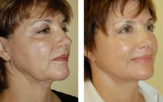 plastic surgery before and after photos, beverly hills facial plastic surgeon dr. azizzadeh before after pics, picture gallery, rhinoplasty photos, facelift photos, blepharoplasty pictures. http://www.facialplastics.info/gallery/