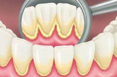 Cao răng màu gì - Những kiến thức cơ bản về cao răng