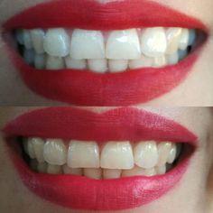 Nu Skin, White Teeth Tips, Ap 24, Anti Aging Skin Care, Instagram Feed, Dental, How To Make, Skincare, Natural