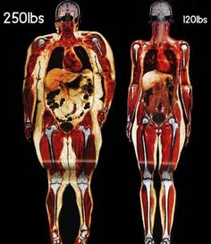 Fat in the body and how it affects your internal organs and skeletal structure
