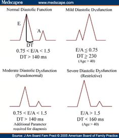 Diastolic Dysfunction is diagnosed based on Doppler ECHO - Blood flow across the mitral valve occurs in 2 phases: an early transmitral flow (E wave) and a late flow with atrial contraction (A wave). The relative contribution of each is expressed as a ratio (E/A). An E/A ratio less than 0.75 or greater than 1.5 indicates DD.