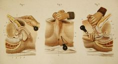 Illustrated Manuel of Operative Surgery (1855) by Bernard & Huette  A cock's trocar was inserted by way of the rectum into the bladder to give relief for acute urinary obstruction. It could be worn by the user chronically to divert the urinary stream until healing took place or a more permanent repair could take palce (if possible).