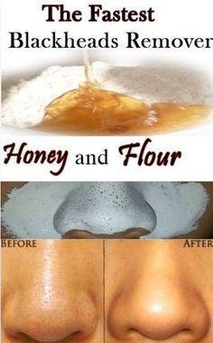 Learn 8 Homemade Treatments that will make you get Rid of Blackheads Naturally.