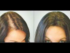 Diga adeus a queda de cabelo com apenas 1 ingrediente em apenas 3 dias  ...