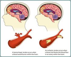 Life Insurance after a Stroke