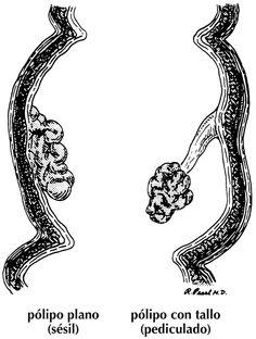 Qué son los pólipos del colon?