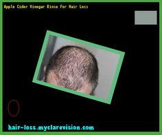 Apple Cider Vinegar Rinse For Hair Loss 152200 - Hair Loss Cure!