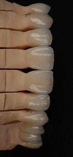 #dientesdeporcelana así trabajan nuestros colegas los #protėsicos #dientesbonitos www.clinicadentalmagallanes.com