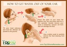 Home remedies for inner ear infection is one of the best way for the treatment because such treatments are all made from natural plant. Drain Ear Fluid, Fluid In Ears, Top 10 Home Remedies, Cold Remedies, Natural Health Remedies, Clogged Ear Remedy, Clogged Ears, Health And Beauty Tips, Health Advice
