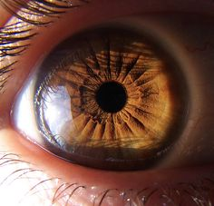 Pure brown eye with pigments covering iris fibre structure. Related to the primary colour red and the physical aspect of health. Probably Chinese constitutional types: fire and earth. Probability related to Western fire and earth constitutions as well.