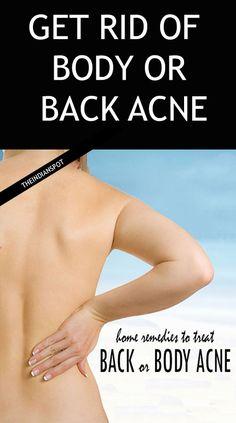 Get Rid Of Body Acne