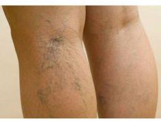 CURE.ba - Proširene vene - Efikasno prirodno liječenje varikoznih vena