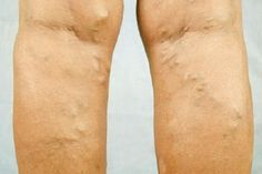 you-suffer-from-varicose-veins-make-your-own-drops-against-varicose-veins