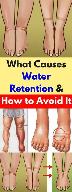 What Causes Water Retention and How to Avoid It – healthycatcher