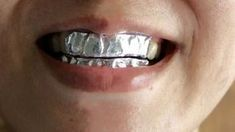 Try this quick and easy remedy to whiten your teeth overnight at home!To do magic to your dull and yellow teeth, simply wrap teeth in aluminum foil. Quick Teeth Whitening, Perfect Smile Teeth, Beauty Skin, Health And Beauty, Teeth Health, Teeth Bleaching, Natural Health Remedies, White Teeth, Body Care