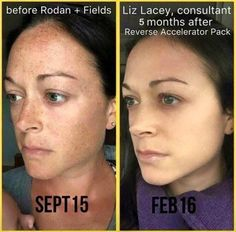 Check out Liz's GORGEOUS results after using Rodan + Fields Reverse & Accelerator Pack in just 5 months!! She's foundation-free & FLAWLESS!!  Kiss those brown spots Goodbye!! With our 60 Day Money Back Guarantee you have nothing to lose except those spots and wrinkles!  Let's get YOU started TODAY!!  www.skinbydeliz.myrandf.com