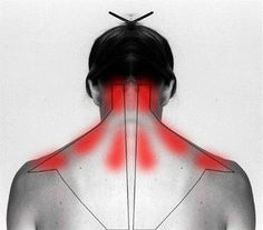 How To Treat And Cure Stiff Neck Or Shoulder To Ease The Pain. This is amazing!...