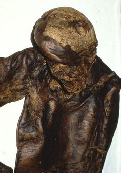 Lindow Man was discovered in an acidiferous bog
