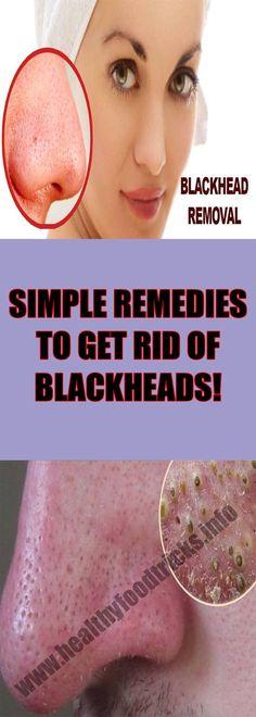 SIMPLE REMEDIES TO GET RID OF BLACKHEADS! – Healthy Food Tricks