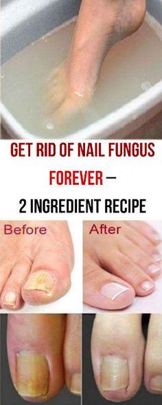 Get Rid of Nail Fungus Forever – 2 Ingredient Recipe - Nagelpilz Natural Health Remedies, Natural Cures, Natural Healing, Herbal Remedies, Natural Treatments, Natural Foods, Cold Remedies, Natural Beauty, Holistic Healing
