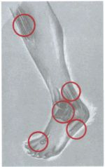 10 common causes for foot painhttp://www.brookdalefootclinic.com/foottencauses.htm