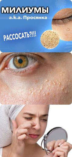Милиумы (просянка, белые угри) на коже – как избавиться Beauty Recipe, Beauty Secrets, Health Fitness, Make Up, Personal Care, Skin Care, Workout, Face, Books