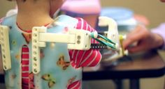 3D printed 'Magic Arms' give a little girl use of her limbs and quality of life.