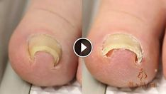 A spectacularly ingenious little device the Japanese invented to make gnarly toenails look pretty