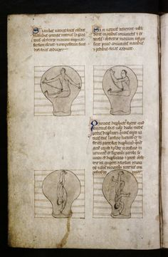 ☤ MD ☞☆☆☆ Treatise on Obstetrics MS Ashmol. 399 England; 13th century, late.