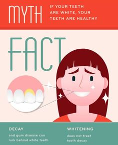 Dentaltown - Myth: If your teeth are white, your teeth are healthy. Fact: Decay and gum disease can lurk behind white teeth. Whitening your teeth does not treat tooth decay. Dental Health Month, Oral Health, Health Diet, Dental Fun Facts, Dental Care For Kids, Healthy Facts, Healthy Teeth, Teeth Whitening Remedies, Family Dentistry