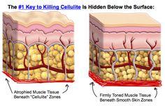 Cellulite treatment at home - How to treat cellulite at home? Cellulite treatment by ultrasound is a safe and pleasant treatment, cellulite treatment by ultraso Cellulite Wrap, Cellulite Scrub, Cellulite Remedies, Reduce Cellulite, Cellulite Exercises, Pore Minimizer Cream, Coconut Oil Cellulite, Peau D'orange, Toxic Foods