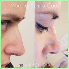 Rhinoplasty Before And After non surgical nose correction Dermal Fillers, Lip Fillers, Thread Lift, Rhinoplasty Before And After, Aesthetic Dermatology, Best Lip Gloss, Facial Rejuvenation, Lip Art, Plastic Surgery