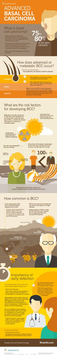 Understanding Advanced Basal Cell Carcinoma #cancer