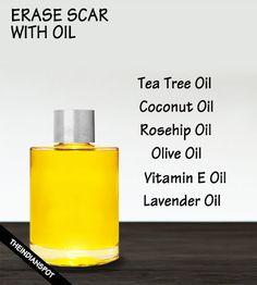 Oil to fade scar – coconut, vitamin e oil, lavender etc….
